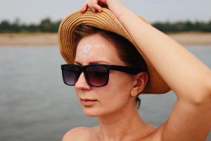 紫外線アレルギーの女性