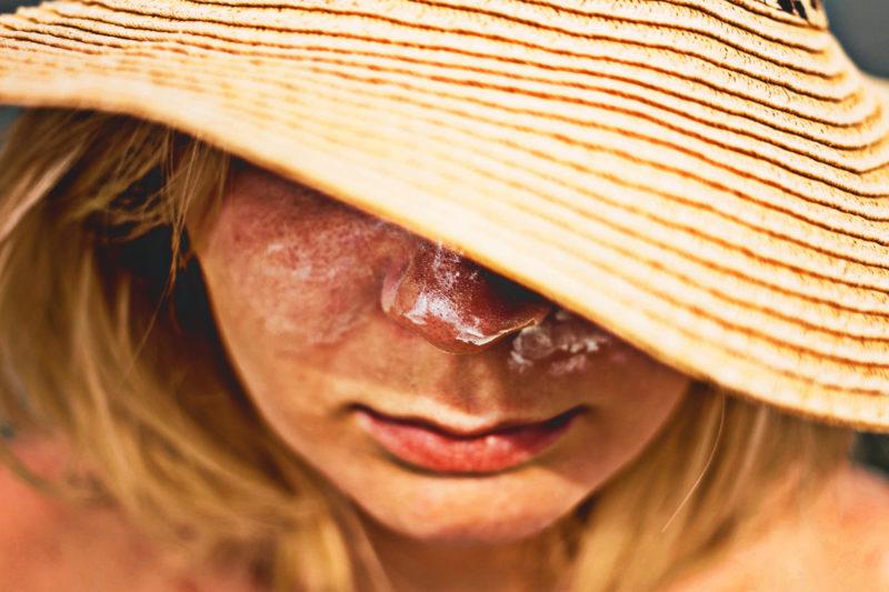 ヒドイ日焼けをした帽子を深くかぶる外国人女性