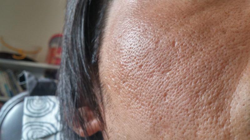 クレータータイプのニキビ跡になってしまった女性の肌