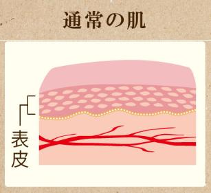 ウルウ通常の肌