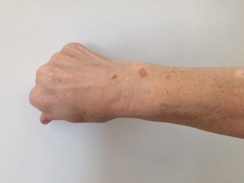 腕に点々と存在しているシミ