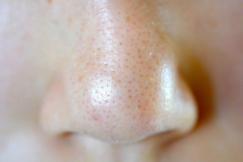 皮脂の詰まりかけた人間の鼻