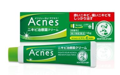 ロート製薬のメンソレータムアクネス ニキビ治療薬クリーム