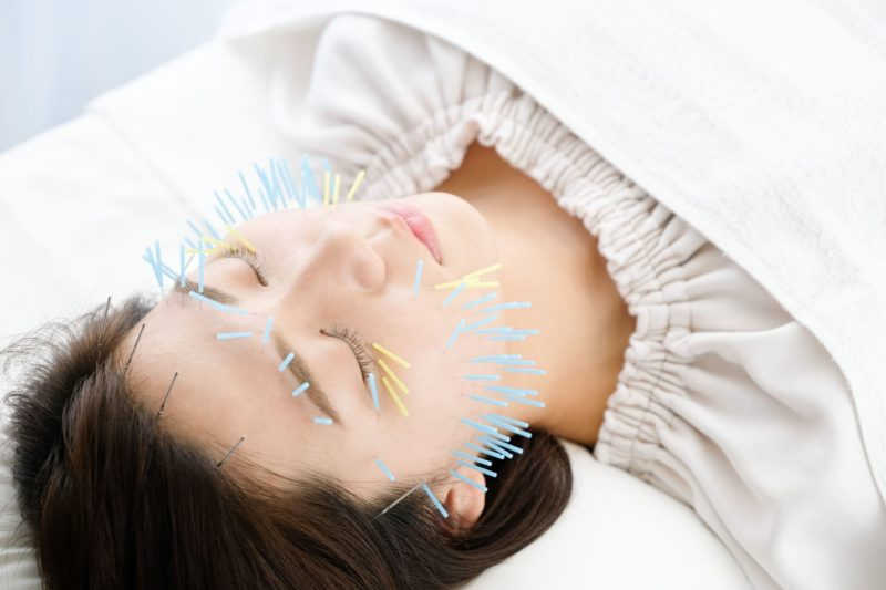 顔に鍼灸針をたくさん刺されている女性