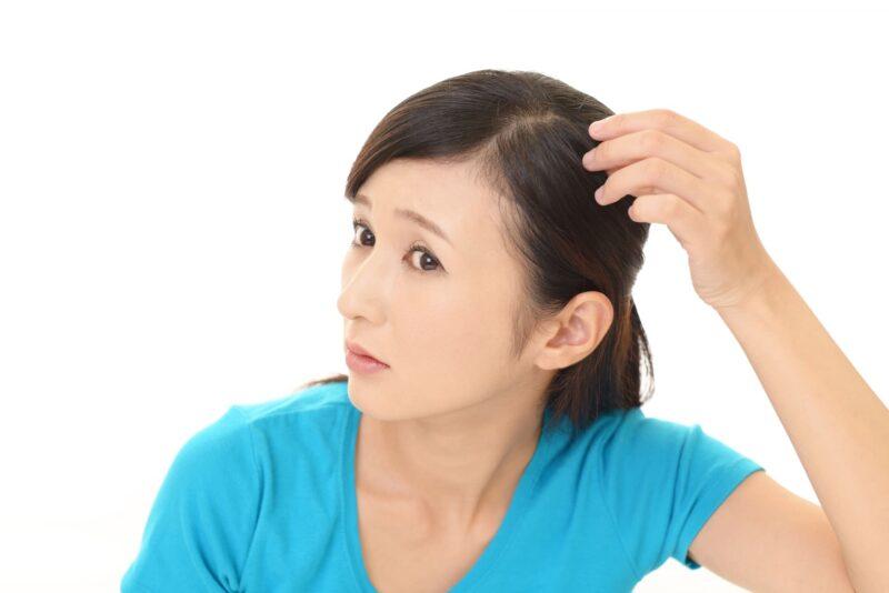 男性だけじゃない女性の髪のフケの原因とその予防法 フケ